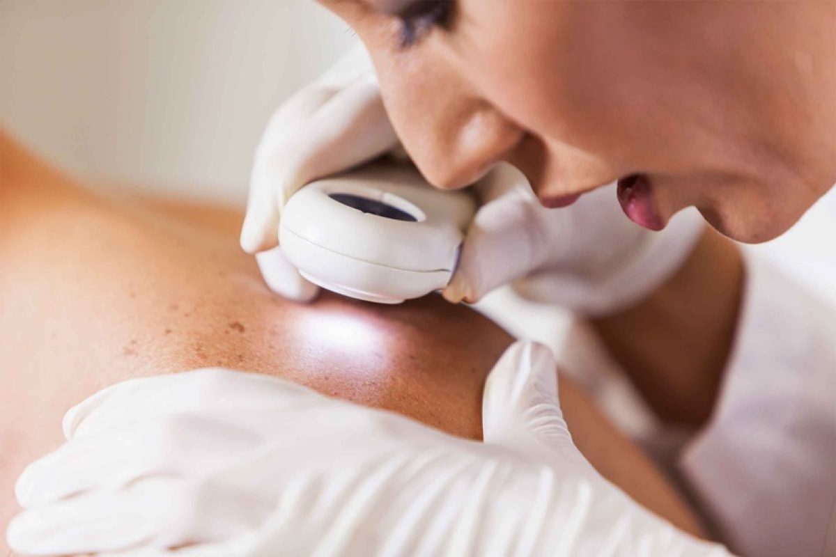 Weight loss surgery can reduce risk of skin cancer: Study