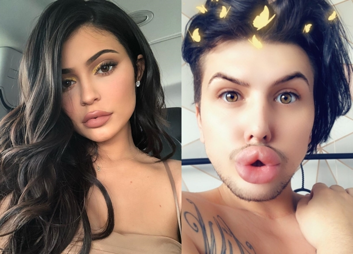Kylie Jenner's super-fan spent over Rs 10 lakh on lip fillers; once it got too much, and BURST!