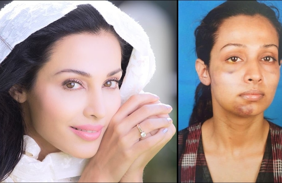 STREE actress Flora Saini reveals being harassed by producer Gaurang Doshi