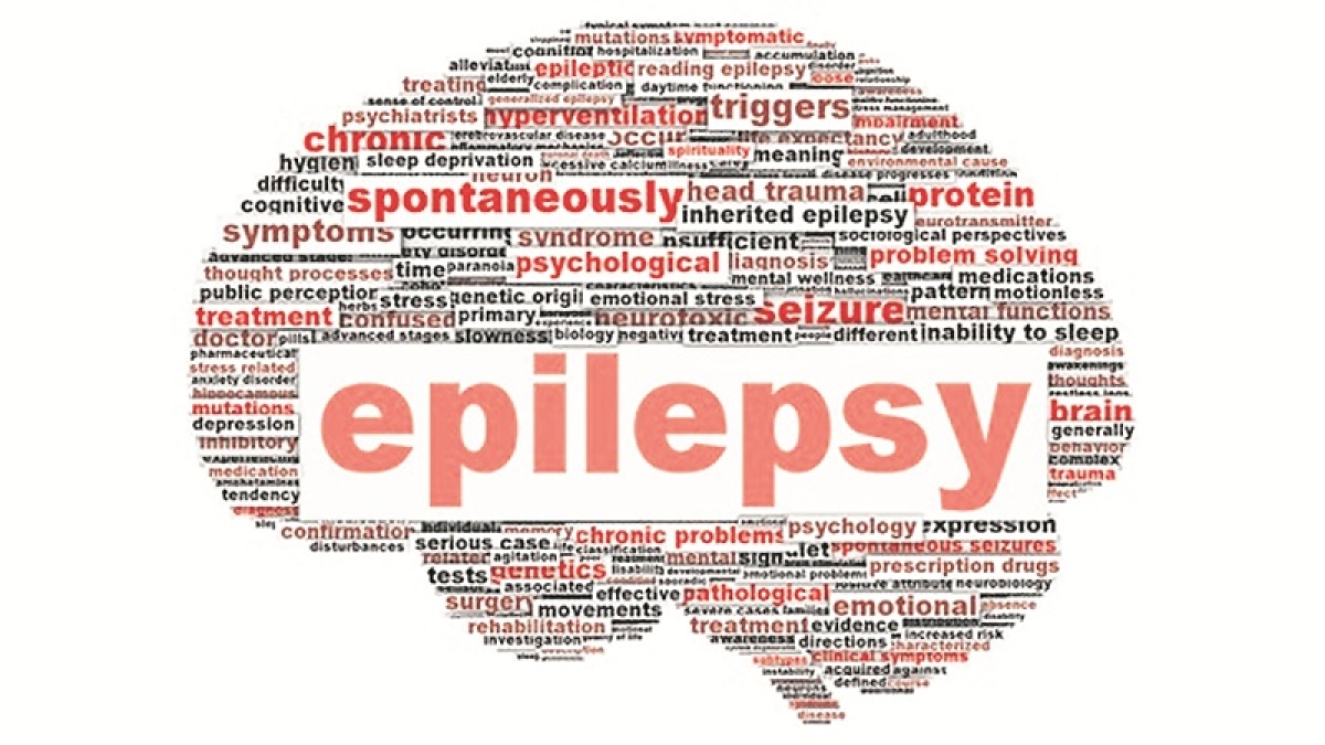 Epilepsy awareness is abysmally low: Doctors