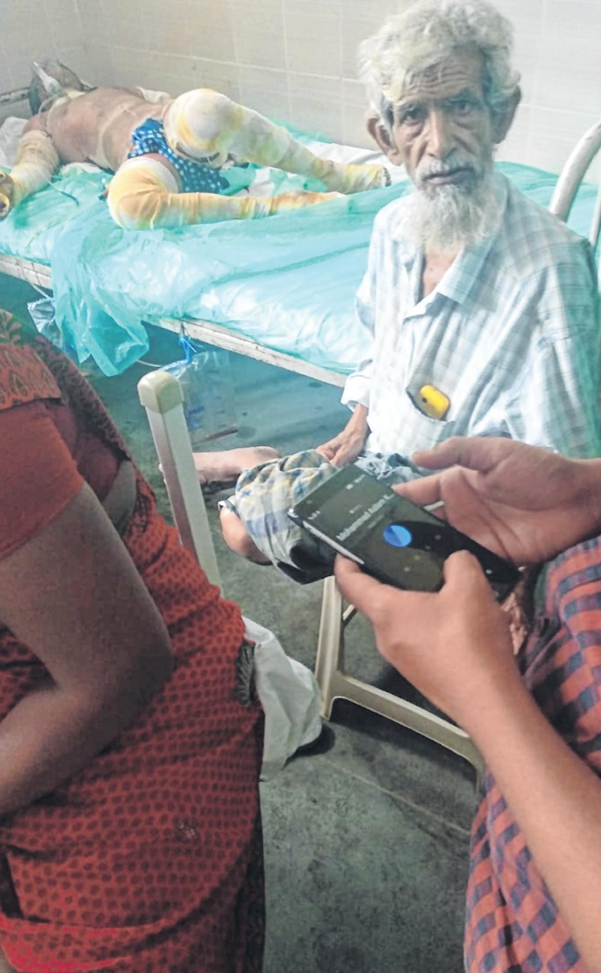 Mumbai: Boy with 95 % burns kept in general ward