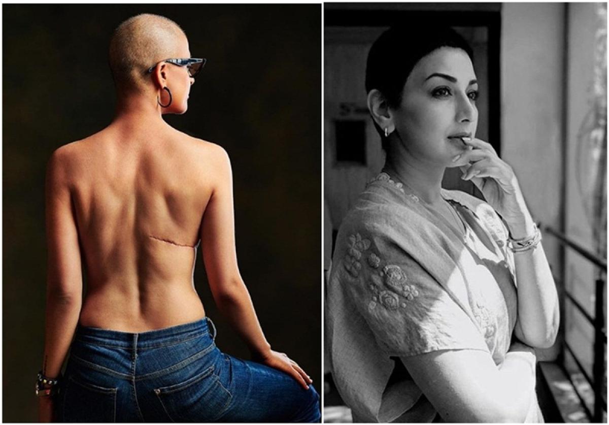 #MondayMotivation: Sonali Bendre and Tahira Kashyap share heart-warming posts on World Cancer Day