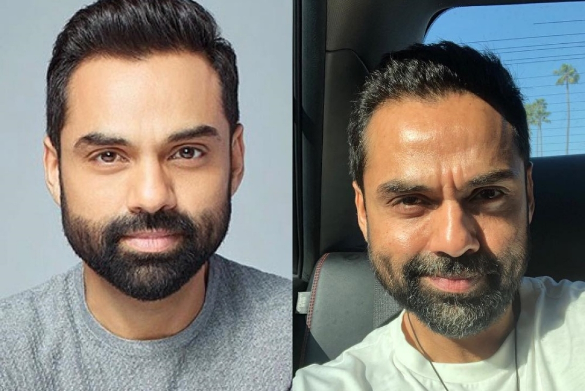 Abhay Deol shows his real and reel face post Photoshop