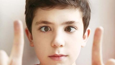 Wandering eye syndrome