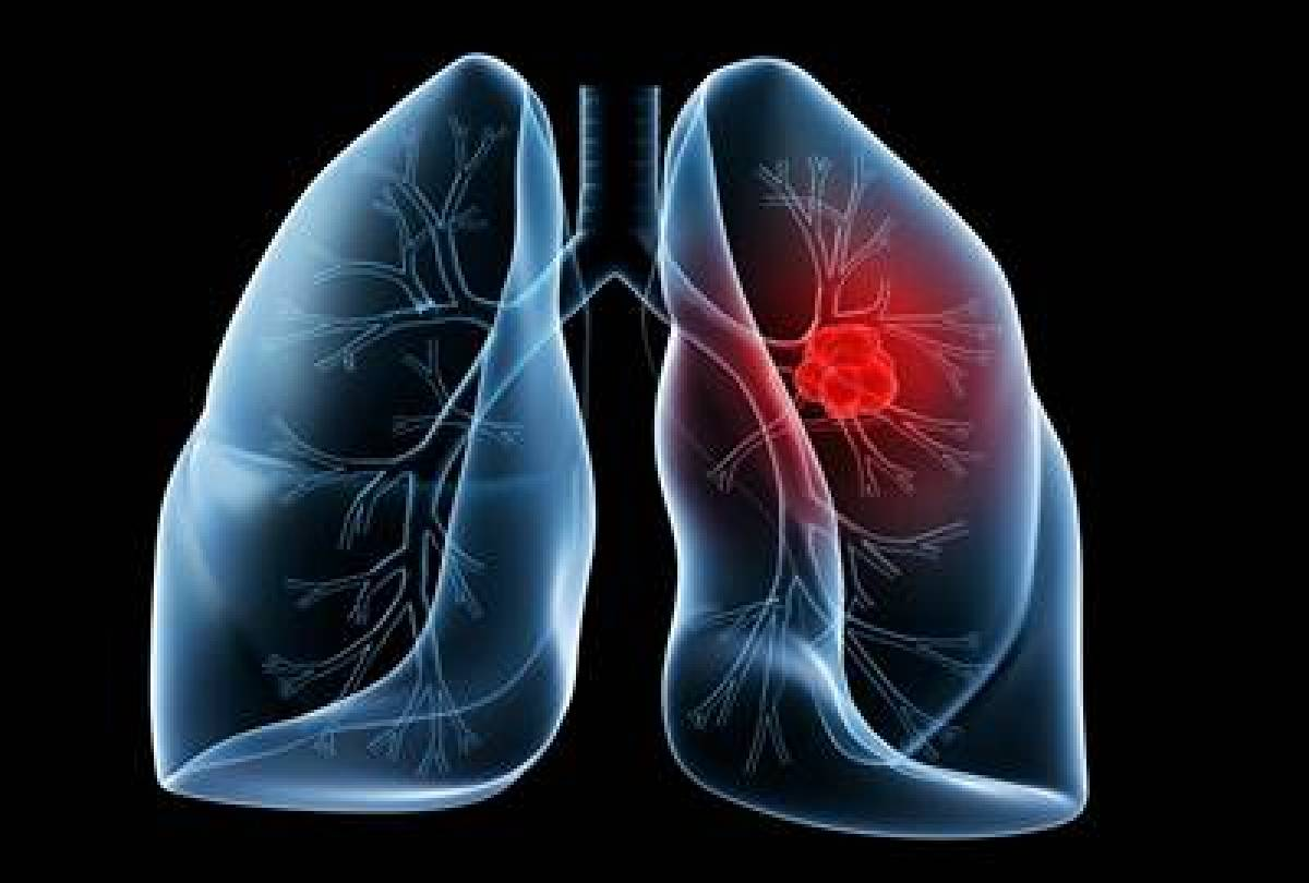 Minimally invasive lung transplants: Leap forward for those affected with advanced lung disease