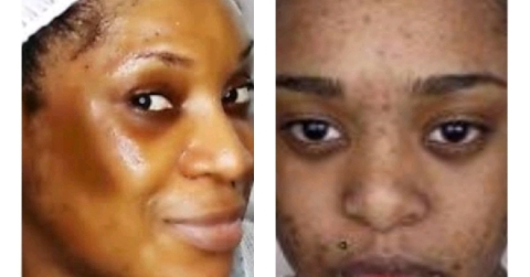 Get Rid Of Sunburns And Dark Spots In These Simple Steps