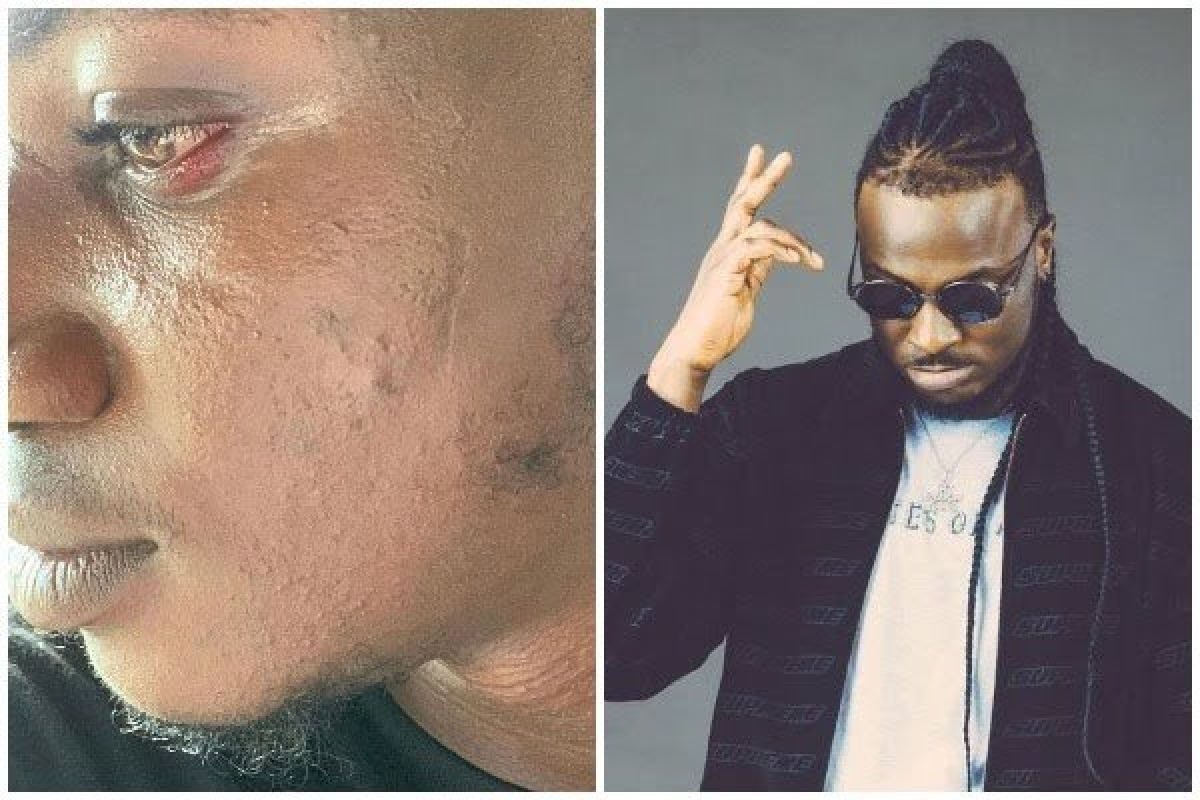 Listen To Peruzzi Admitting He Slapped Pamilerin Before Apologising On Live Radio