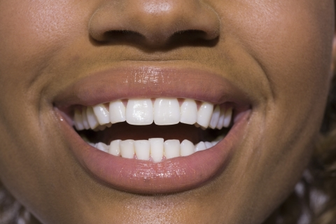 Tooth Decay: How To Identify And Treat It