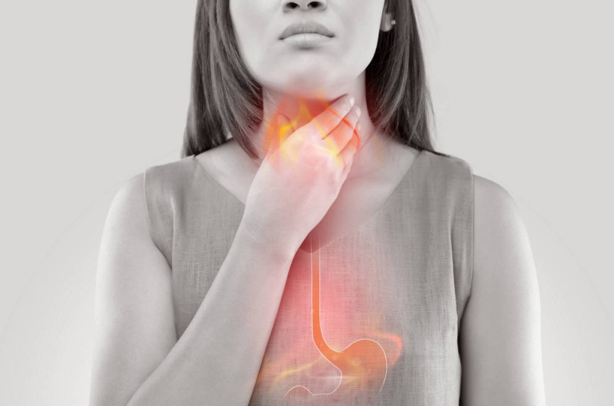 6 Natural Remedies For Heartburn