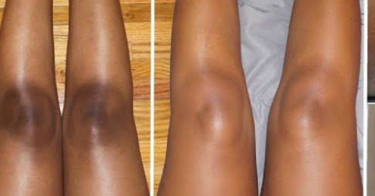 6 Natural Remedies For Dark Knees, Elbows And Inner Thighs