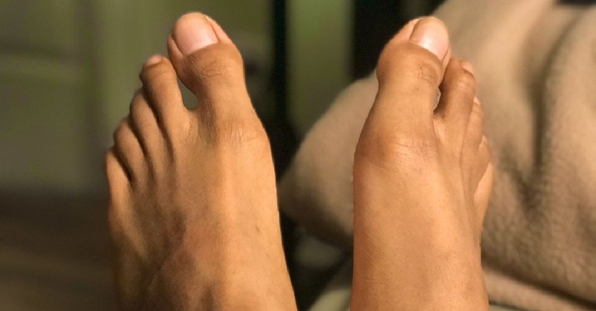 6 Natural Remedies For Shoe Bites