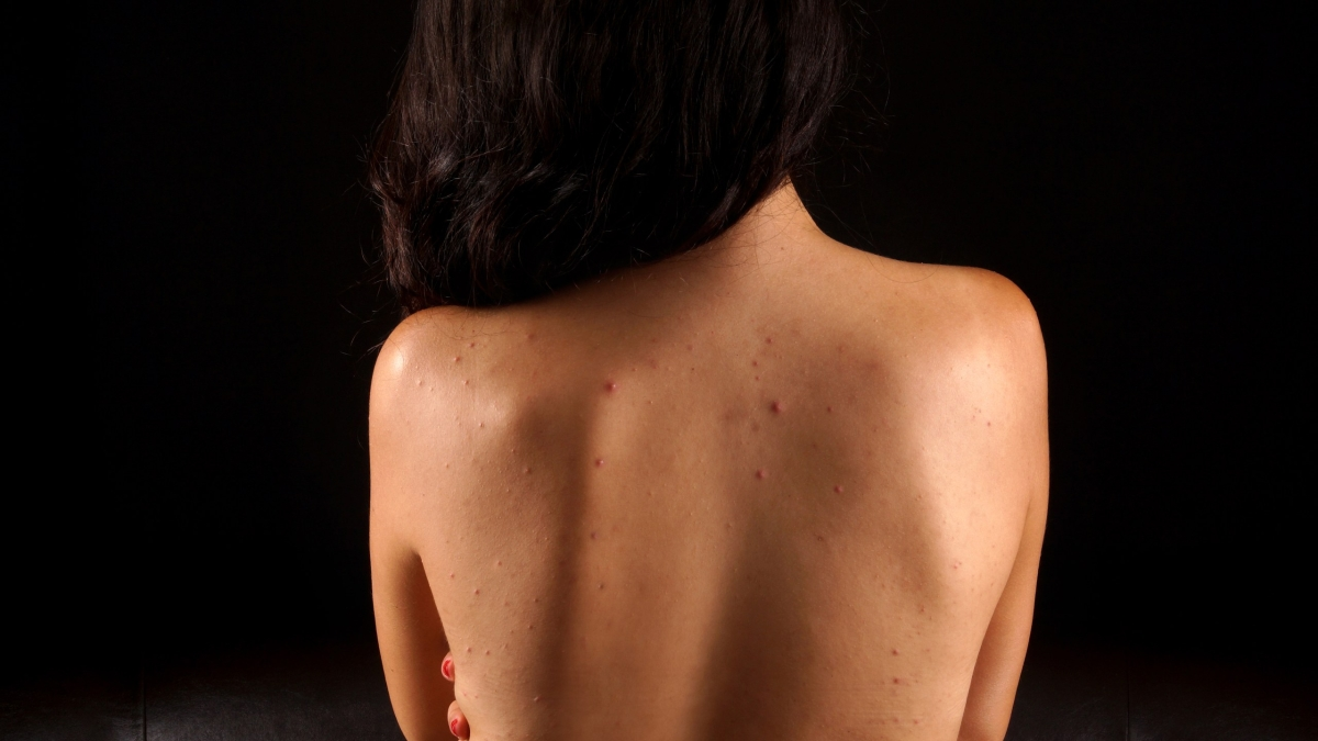 6 Natural Remedies For Back Acne