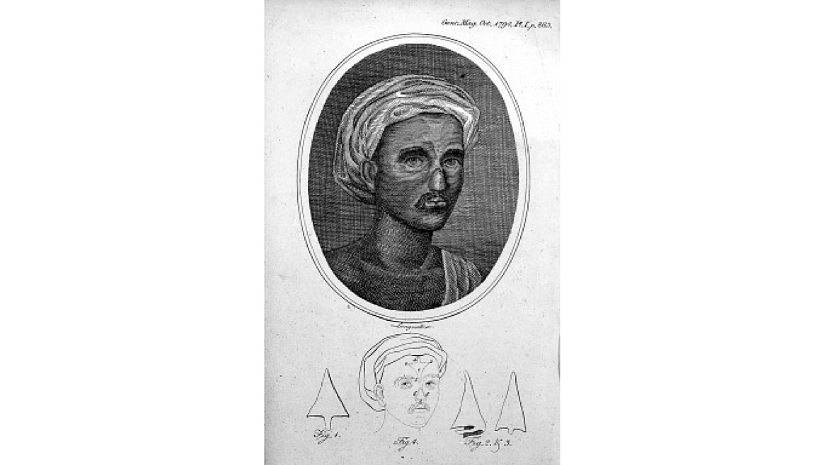 An illustration in the Gentleman's magazine in 1874 titled Indian method of nose reconstruction based on Sushruta Samhita