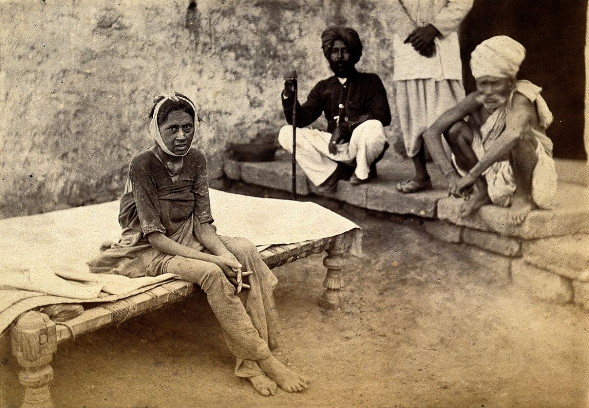 Female patient with bubonic plague in Karachi, India