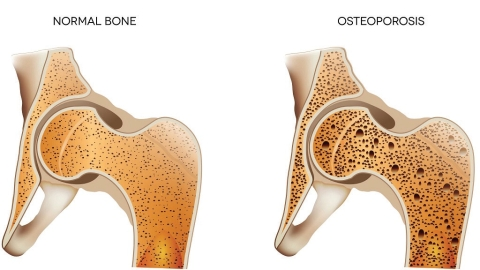 Doctor's blog: Diagnosing Osteoporosis is a fashionable trend, a medical fad