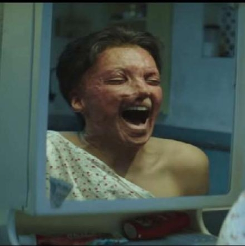 'Chhapaak' trailer: Deepika's portrayal of an acid attack survivor is soul-stirring