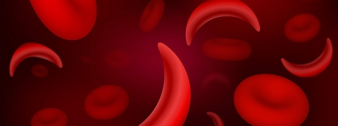 Sickle-cell anemia, a blood related disorder