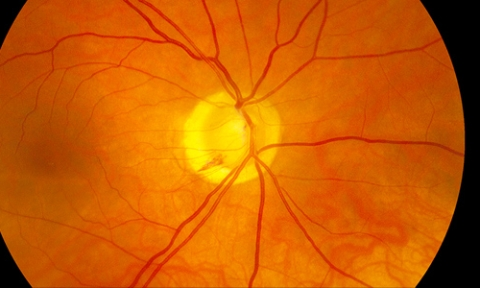 An overview of optic nerve disorders