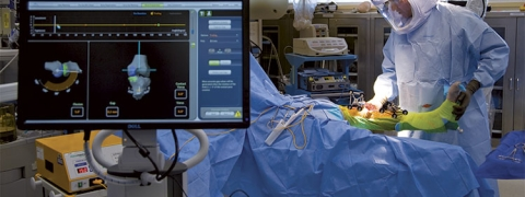 First Robotic knee replacement surgery performed in TN