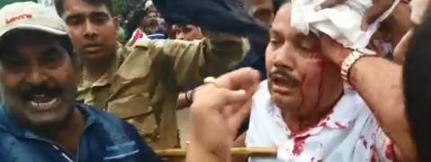 Bengal BJP MP Arjun Singh injured during clash with TMC workers