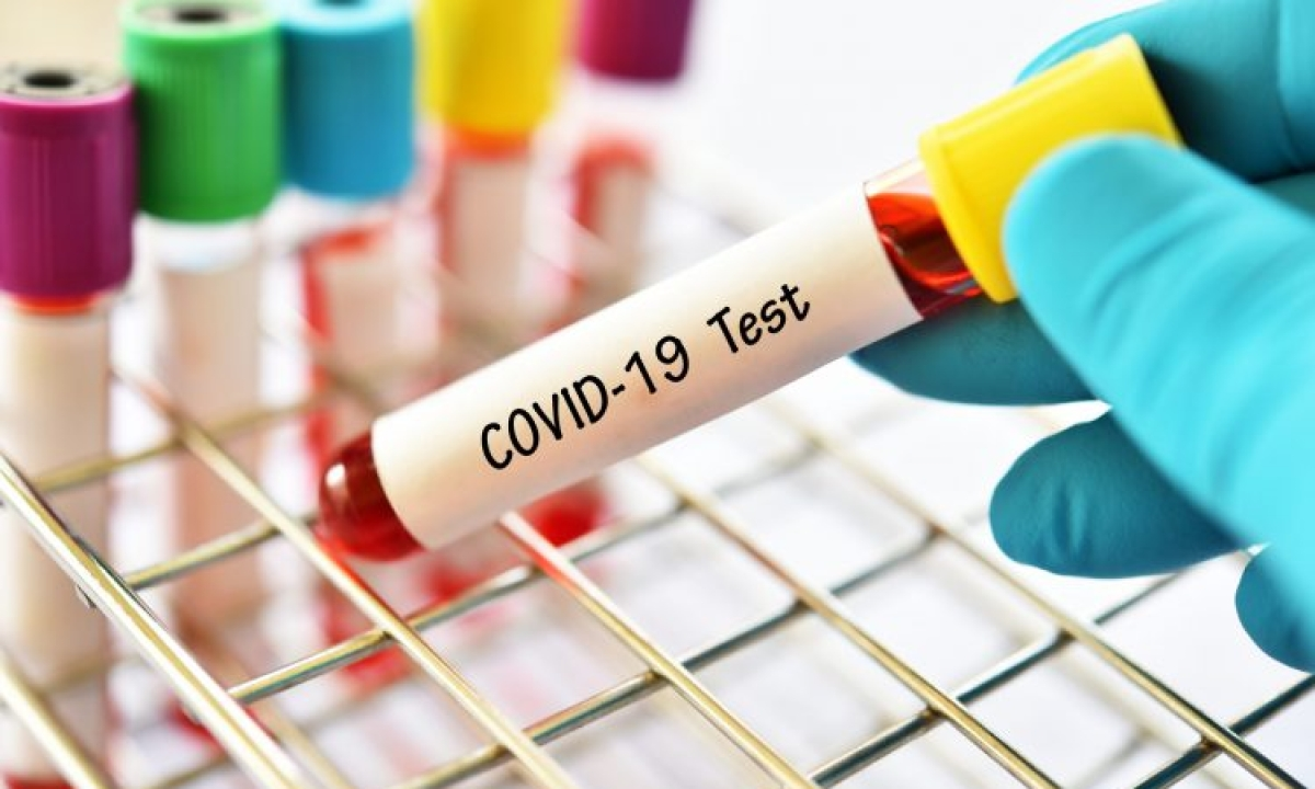 Assam girl proves COVID-19 negative in second test
