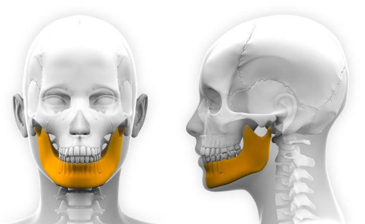 Eureka: मुंह के कैंसर से पीड़ित मरीज को 3डी प्रिंटिग तकनीक से बने टाइटेनियम के जबड़े ने दिया जीवनदान