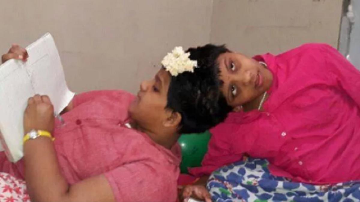 تلنگانہ: سروں سے جڑی دونوں بہنیں دسویں جماعت کا امتحان دیں گی