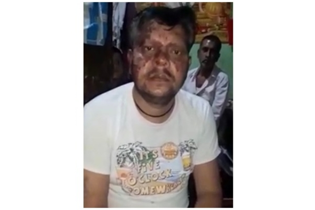 Narendra Kumar after the attack