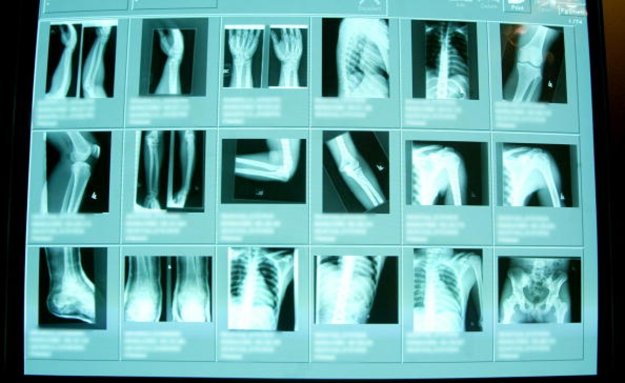 High resolution digital x-rays are seen in the emergency room at Coney Island Hospital, in  New York City. (Mario Tama/Getty Images)