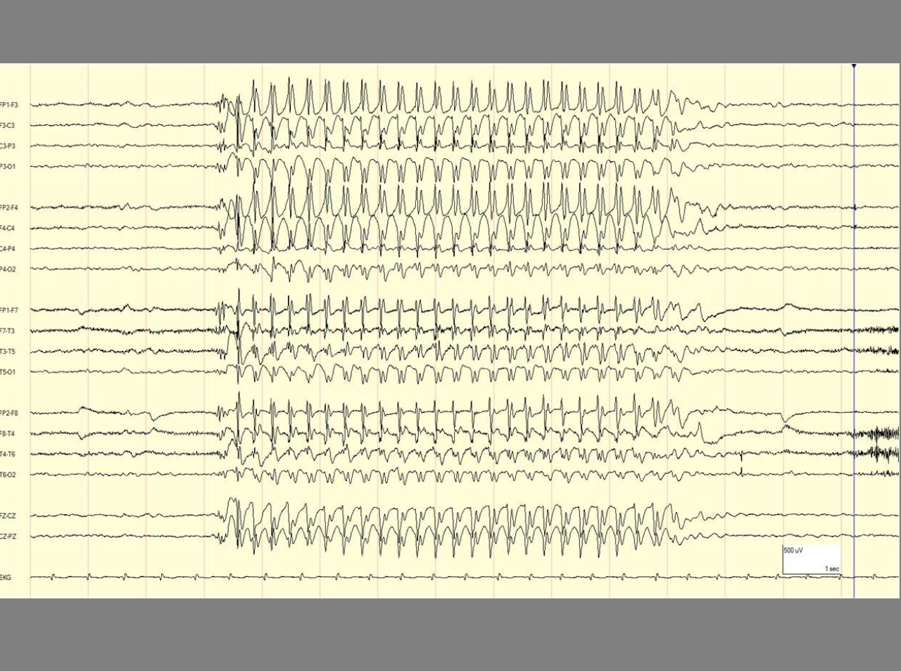 The EEG, a monitor of brain activity, during a seizure. In the left and right corners of the EEG tracing is the normal functioning of the brain. In the center is the rhythmic activity that characterizes a seizure. (www. epilepsydiagnosis.org)