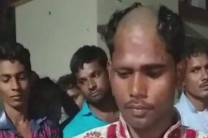 Bald And The Not-So-Beautiful: After Groom Demands Dowry, Bride's Kin Makes Sure He Loses His Hair