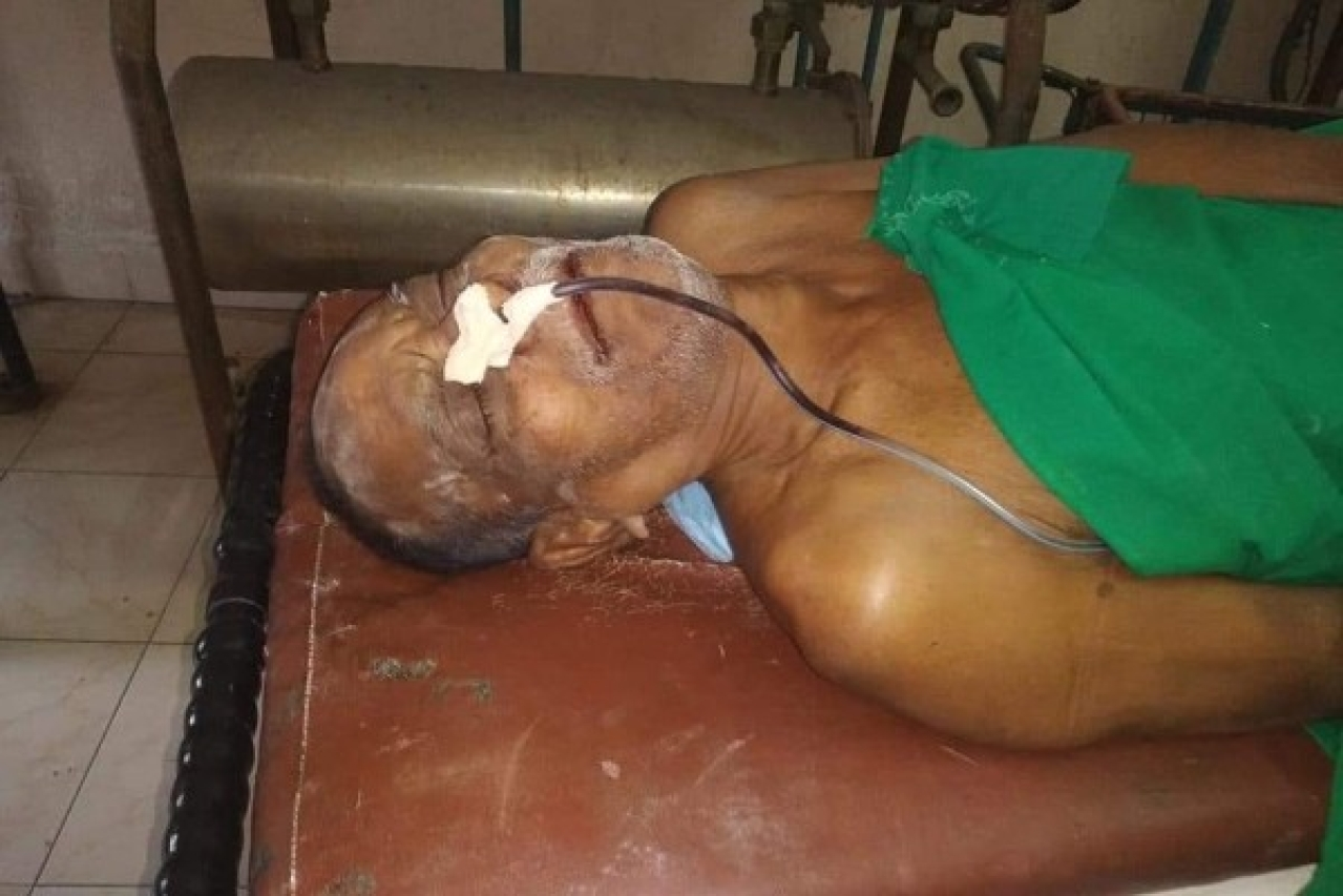 Telangana: Warangal Priest Beaten Up By 'Miscreants' For Playing Suprabatam; Left With Fractured Ribs