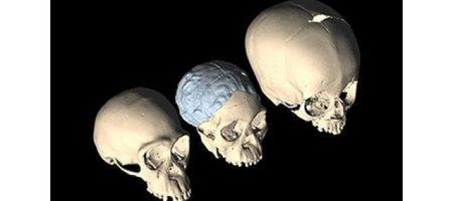 Babies' unfused skulls linked to bipedalism