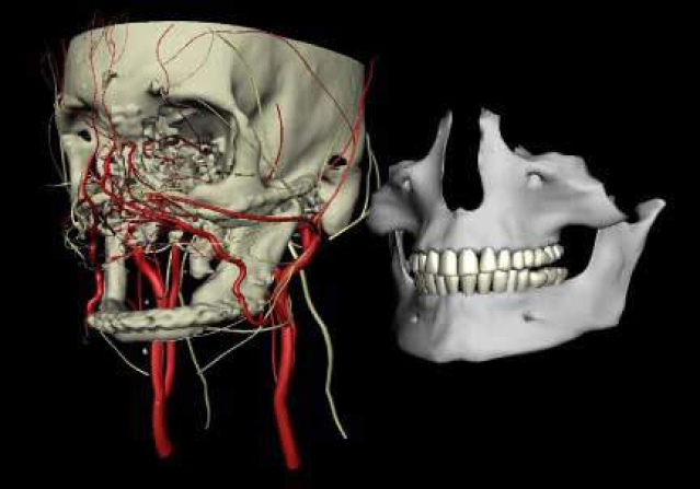 Human face transplants evolve with 3D imaging