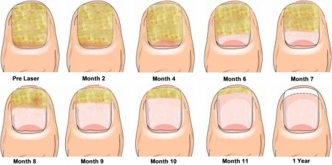 The Top 5 Reasons Why People Get Fungal Nail Infections