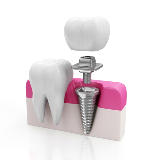 What is Dental Implant?