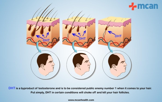 Can A Hair Transplant Always Provide 100% Coverage For The Balding and Receding Parts?