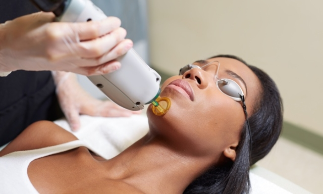 Laser hair removal: the answers to your questions