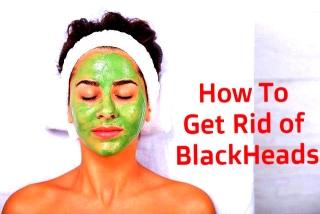 15 Ways to Get Rid of Blackheads
