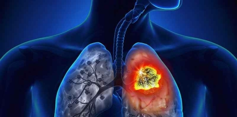 Risk of Lung Cancer