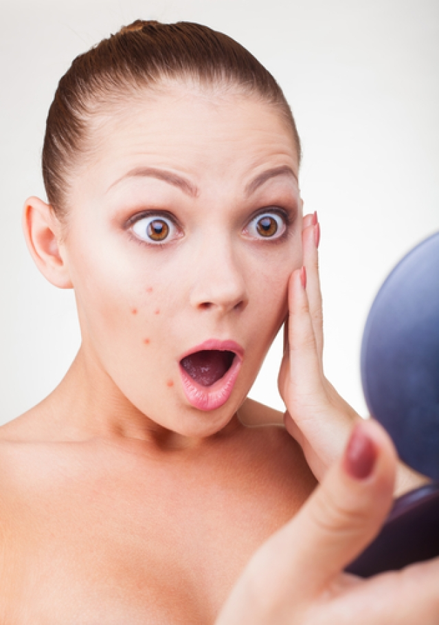 How to Get Rid of Severe Acne?