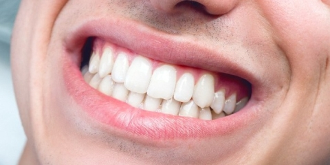 5 Things Your Teeth Wish They Could Say to You Or Make You Hear