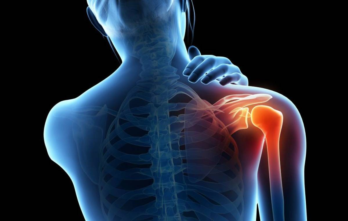 What Are The Best Natural Remedies That Help Relieve Your Joint Pain?
