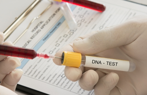 What You Should Know Before Taking a Home DNA Test
