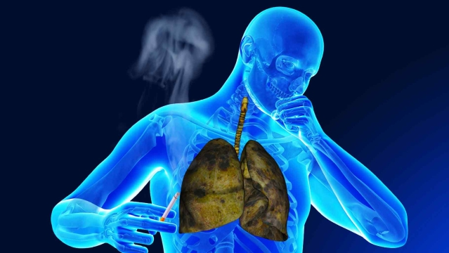 I operate upon lung cancer cases in adults as young as 29 years old. A large number of them have never smoked.