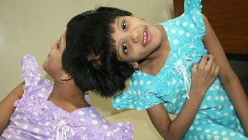 "13-year-old conjoined twins Veena and Vani. (Courtesy: Facebook/ <a href=""https://www.facebook.com/Veenavanitwins/photos/a.1427912737430863.1073741825.1427911764097627/1427912750764195/?type=3&theater"">VEENA-VANI conjoined twins</a>)"