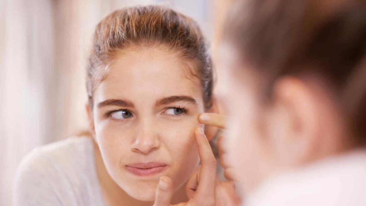 Why Do You Keep Getting Pimples at the Same Spot? - Quint FIT