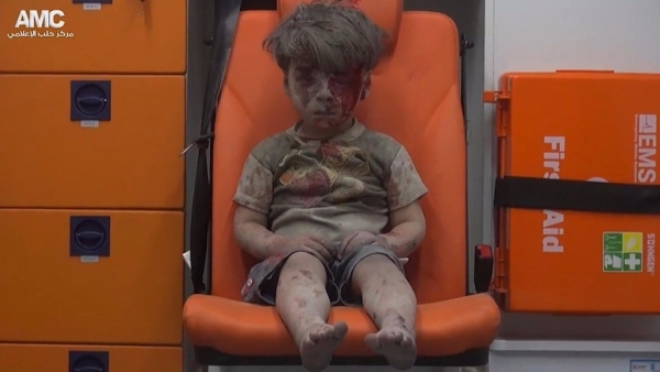 The media was ushered in for an extended photo session after the four-year-old boy was pulled out of rubble following a Russian airstrike. (Photo: AP)