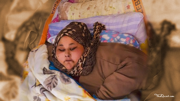 Eman Ahmed's treatment had come to be an event that has got the world curious about 'bariatric' or weight loss surgery.