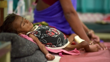 Two-month-old Jyoti lies in a bed in a malnutrition intensive care unit in Dharbhanga Medical College in Dharbhanga, Bihar.